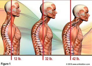 text_neck_illustration